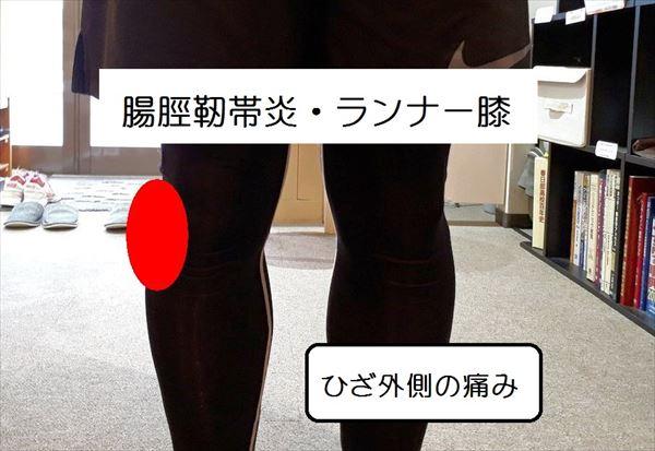 腸脛靭帯炎・ランナー