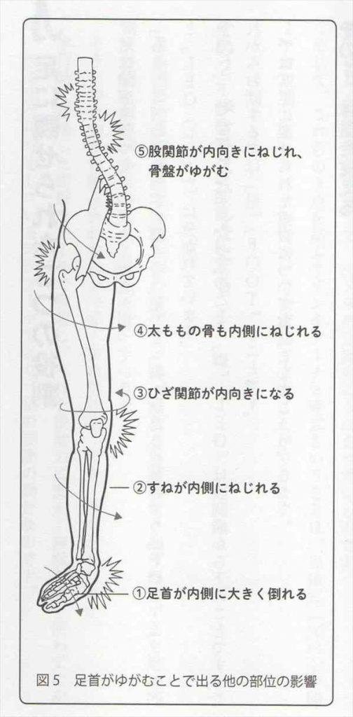足首の歪みと全身の歪み